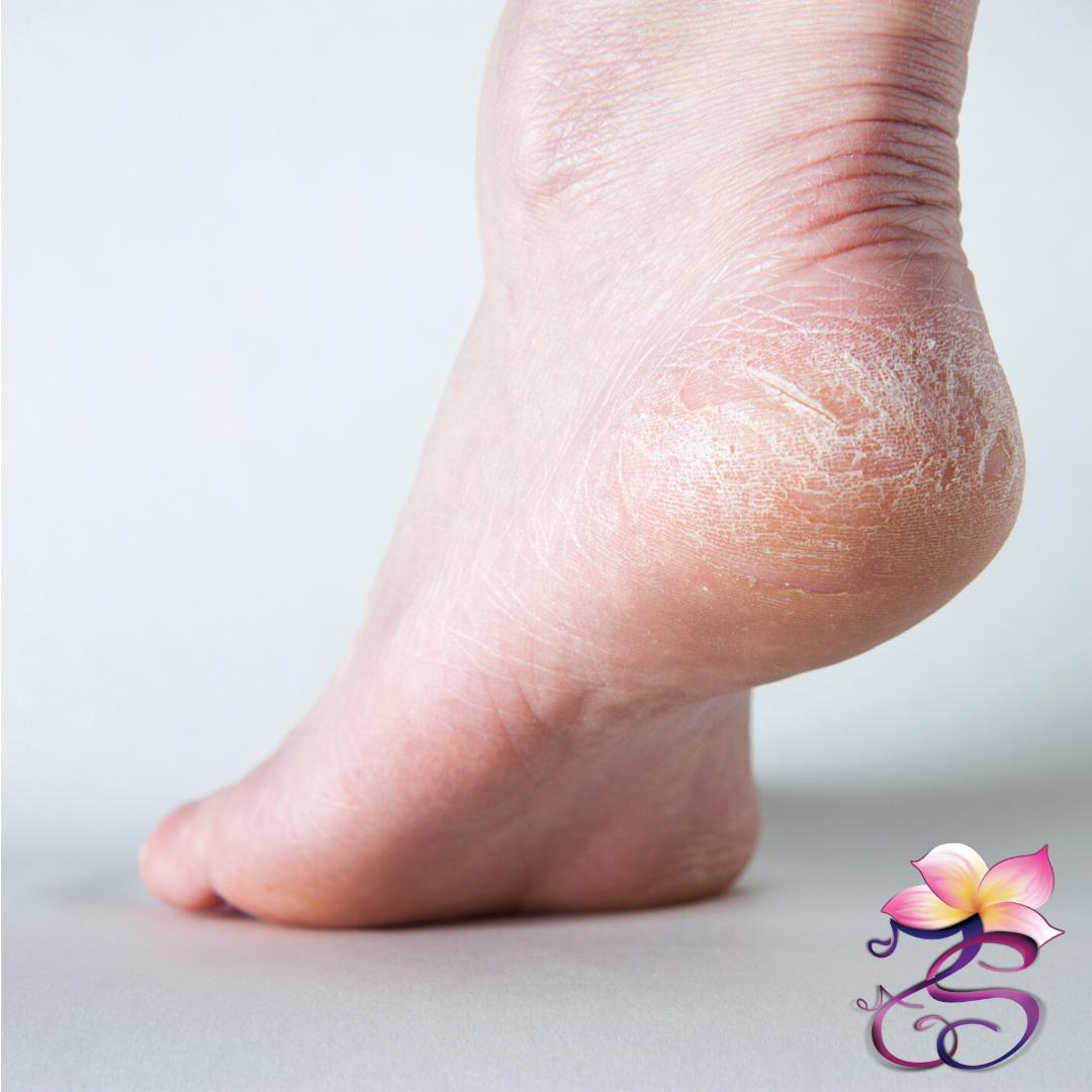 Il rimedio naturale per i tuoi piedi
